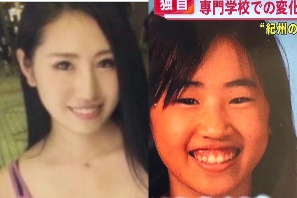 須藤早貴の顔の変化がやばい!整形したポイント5つ!高校生の頃から変わっている!?-5