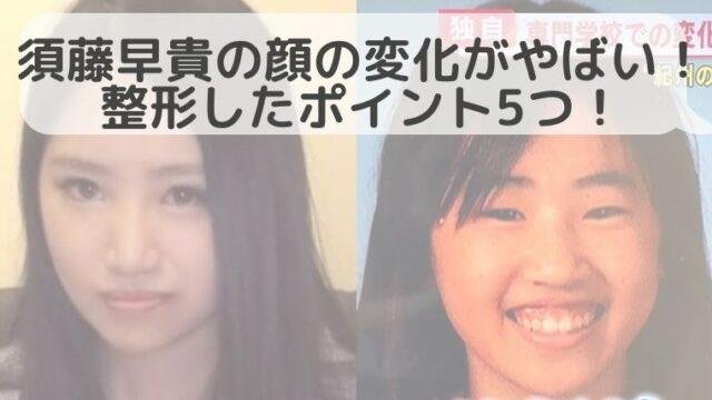 須藤早貴の顔の変化がやばい!整形したポイント5つ!高校生の頃から変わっている!?