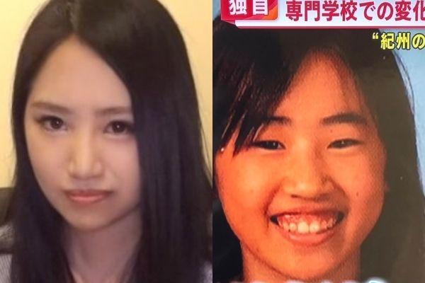 須藤早貴の顔の変化がやばい!整形したポイント5つ!高校生の頃から変わっている!?-7